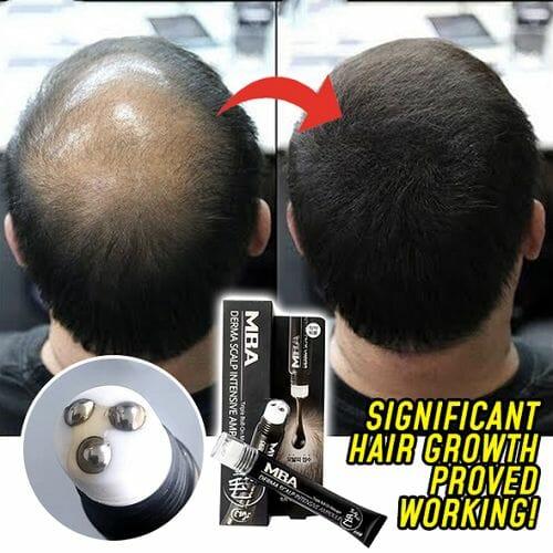 Scalp Intense Roll-on Hair Growth Serum